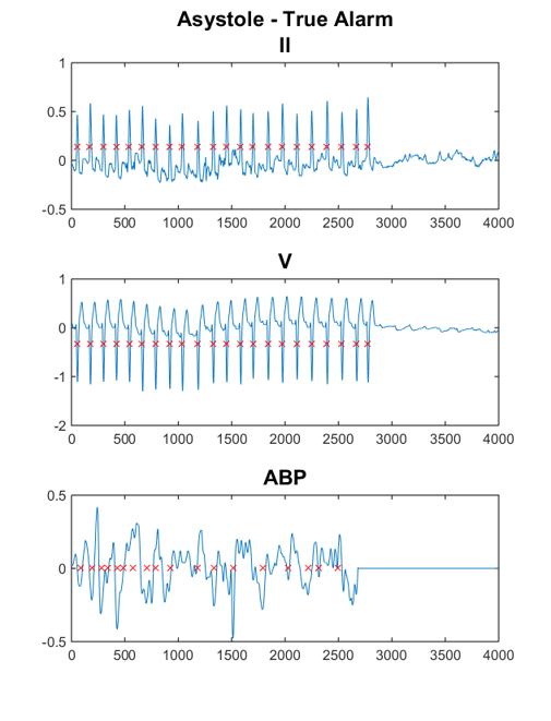 Physiological Waveform Analysis SURF Stanford Medicine